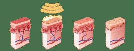 Usuwanie trądziku różowawego