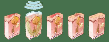 Leczenie trądziku aktywnego