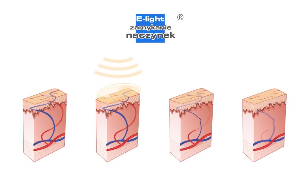 Laserowe zamykanie naczynek jest skuteczne shr epil motion